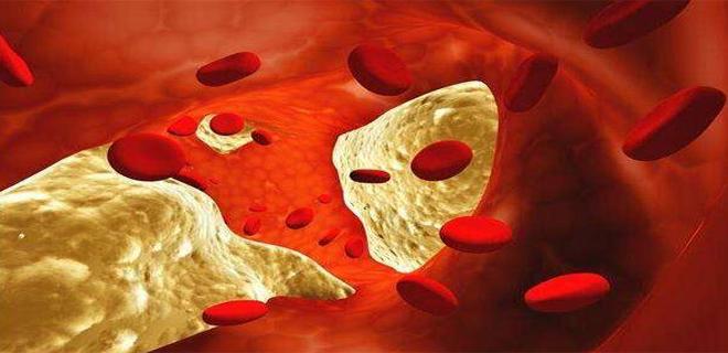 胶原蛋白肽预防心脑血管疾病