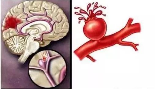 活性肽与脑血栓.png