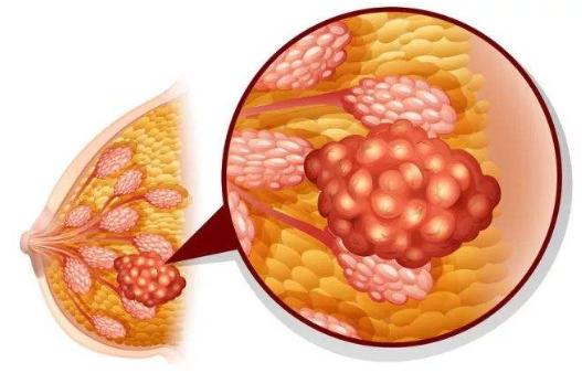 小分子肽能治疗乳腺增生吗.png